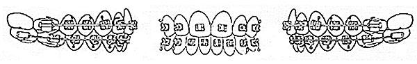 Elastics for braces